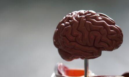 Mozek, který napadá onemocnění zvané Alzheimer.