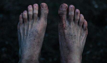 Nohy, které nejčastěji postihuje nemoc králů.