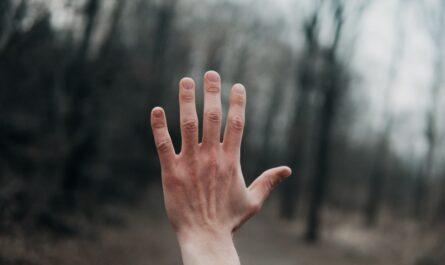 Chlapcova ruka, kterou trápí onemocnění kůže.